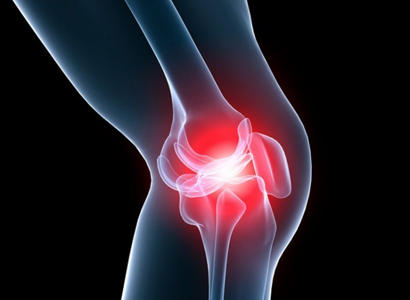How effective is yoga for osteoarthritis knee treatment? 17