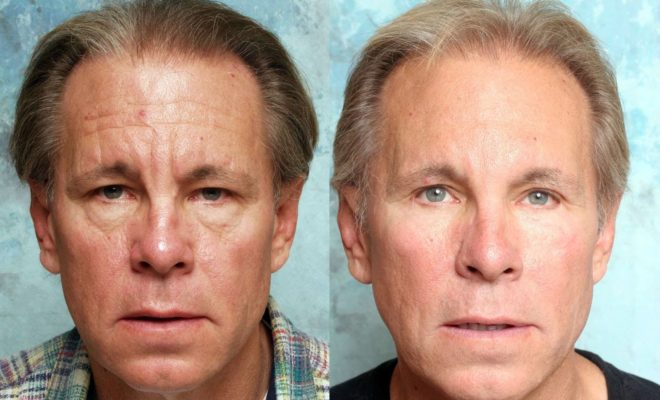 What are fairness tips for men to get glowing face? 6