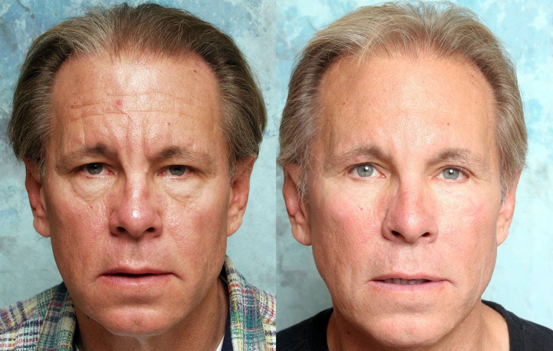 What are fairness tips for men to get glowing face? 3
